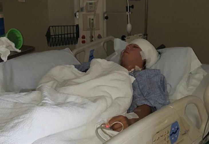 Air Force Veteran Stephen Jacinto shortly after his operation to remove a tumor from his brain stem