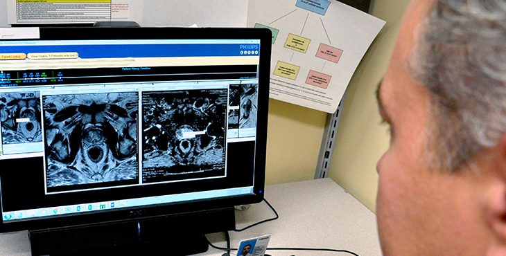viewing MRI images of prostate gland